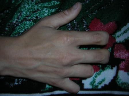Рука без части фаланг (пальцев)